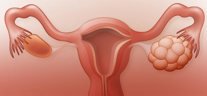 Poly Cystic Ovarian Disease | Health Mantra Magazines