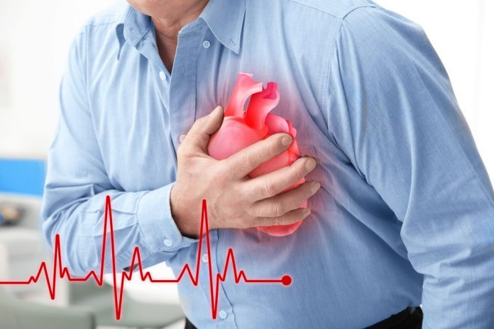 About Cardiac Issue